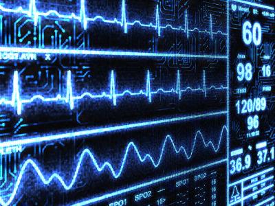 Misdiagnosed Heart Attack