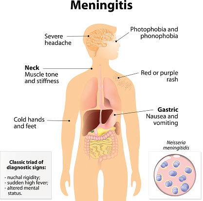 Diagram of Meningitis Symptoms