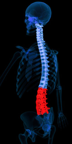 Cauda Equina Syndrome X-Ray of Spine