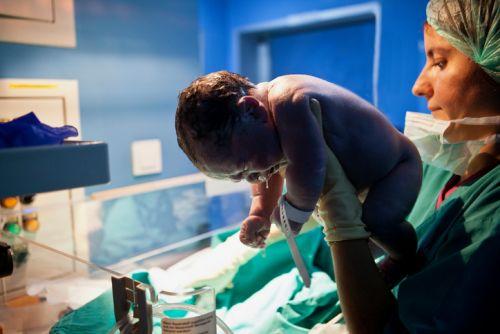 Newborn after Birth Trauma