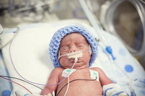 Premature newborn baby being treated in intensive care as he is hooked up to an IV and health monitors