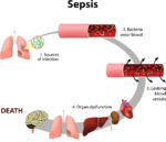 Diagram of Sepsis